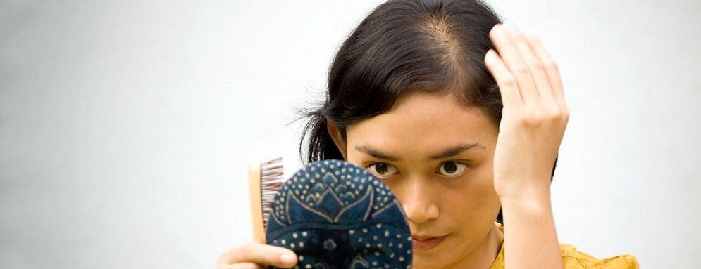 Male Pattern Baldness Treatments
